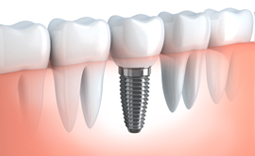 https://the-dentist.co.in/wp-content/uploads/2018/05/dental-implants-small-150x150.png